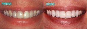 bio white sbiancamento, bio white sbiancante, biowhite sbiancamento, denti bianchi